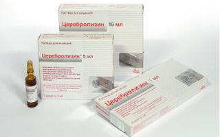 Спинальная мышечная атрофия верднига гоффмана: лечение и симптомы у детей, продолжительность жизни