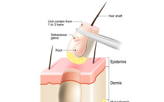 Андрогенная алопеция у мужчин (андрогенетическая): лечение облысения народными средствами и не только, отзывы, причины болезни
