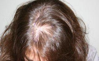 Диффузная алопеция (телогеновое выпадение волос): что это такое, лечение у женщин и мужчин, фото, отзывы, витамины от облысения негормональной этиологии