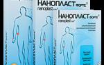 Дискогенная радикулопатия пояснично-крестцового отдела позвоночника: симптомы, лечение радикулита