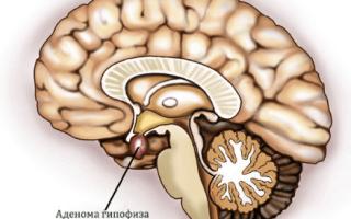 Акромегалия: причины и симптомы болезни, лечение, диагностика