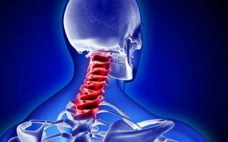 Препараты, улучшающие мозговое кровообращение при шейном остеохондрозе, лечение и признаки нарушений