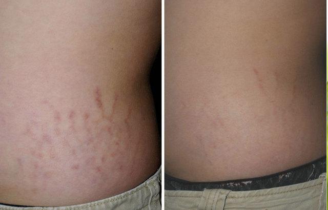 Растяжки на спине: причины у подростков до 15 лет, как избавиться от стрий