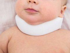 Кривошея у новорожденных: признаки у грудничка в 3 месяца, как исправить, основные симптомы
