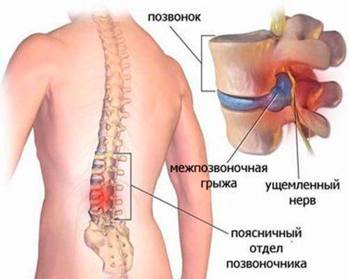 Боль в правом подреберье, отдающая в спину, почему болит под ребрами сзади