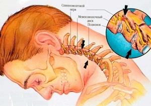 Остеохондроз 2 степени (поясничного, шейного отдела): причины, лечение