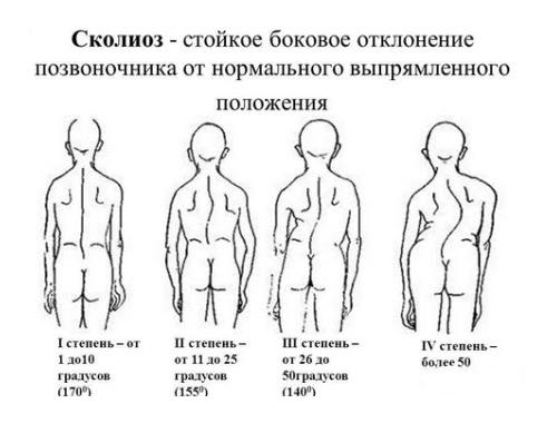 Грудопоясничный сколиоз (1, 2 степени): причины, симптомы, лечение