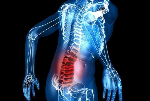 Отек костного мозга позвоночника: что это такое, как снять отечность
