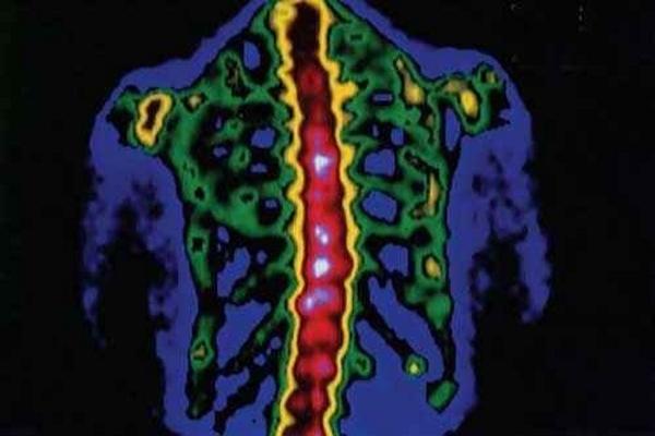 Остеомиелит позвоночника: симптомы воспаления костного мозга, причины и лечение