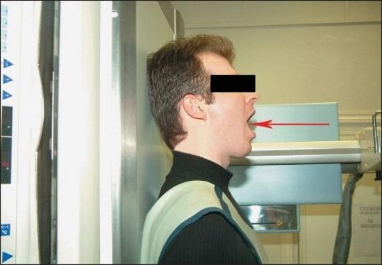 Рентген шейного отдела позвоночника, что показывает рентгенография (с функциональными пробами, в двух проекциях)
