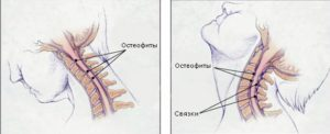 Спондилез позвоночника: лечение, причины и симптомы, что это за болезнь, степени