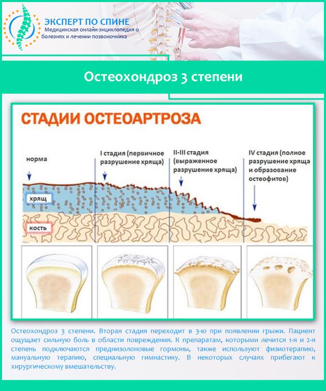 Обострение остеохондроза шейного отдела: симптомы и лечение позвоночника, что делать