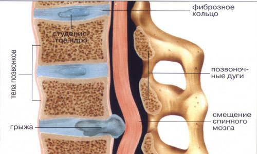 Почему болит спина в области лопаток, причины болей выше поясницы в позвоночнике