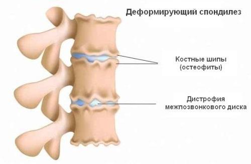 Деформирующий спондилез поясничного-крестцового отдела позвоночника: причины, лечение