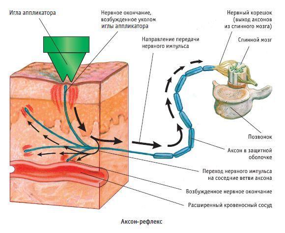 Аппликатор кузнецова при шейном остеохондрозе: инструкция по применению, отзывы, как пользоваться