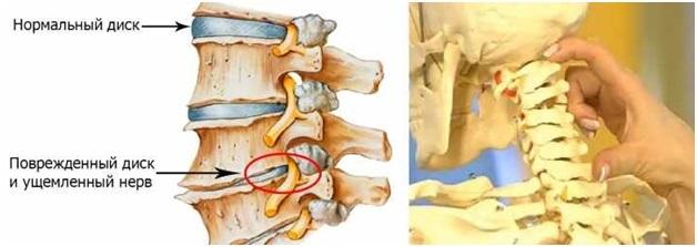 Боль в верхнем шейном отделе позвоночника