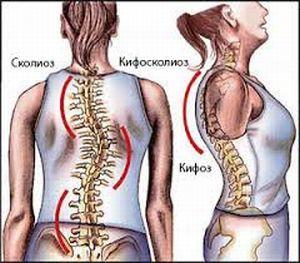 Кифосколиоз грудного отдела позвоночника 1, 2 степени: причины, симптомы, лечение