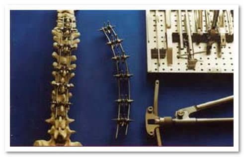 Шейный отдел позвоночника анатомия