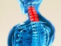 Ретролистез l2-l5 позвонка: что это такое, причины, симптомы и лечение