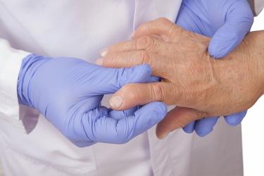 Анализы на ревматоидный артрит: диагностика, как сдавать кровь