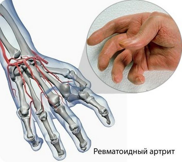 Ревматоидный артрит пальцев рук: первые симптомы, как лечить отеки кистей