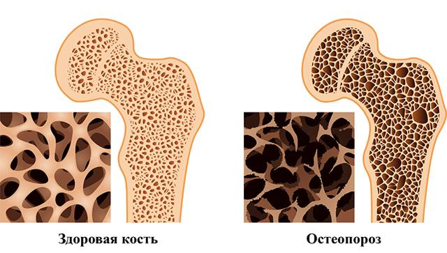 Какой врач лечит остеопороз у женщин и мужчин, пожилых людей, к кому обращаться
