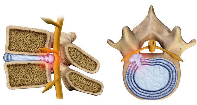 Боль в грудном отделе позвоночника: симптомы, причины, что делать, почему болит спина