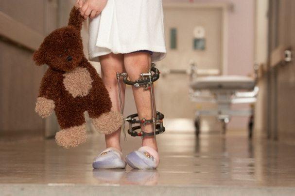 Ревматоидный артрит у детей: симптомы, лечение и диагностика