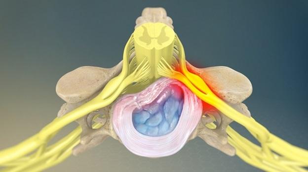 Корешковый синдром пояснично-крестцового отдела: симптомы и лечение радикулопатии позвоночника