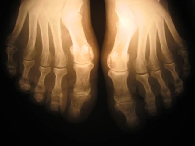 Остеопения и остеопороз: разница, причины и симптомы, лечение