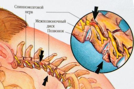 Вертеброгенная цервикалгия (хроническая, острая): причины, симптомы, лечение