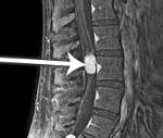 Эпендимома спинного мозга и позвоночника: прогнозы, симптомы, лечение