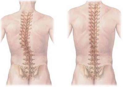 Лечение сколиоза: как лечить позвоночник, можно ли исправить искривление у взрослых