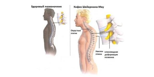 Болезнь Шейермана-Мау (юношеский кифоз): лечение, упражнения для позвоночника