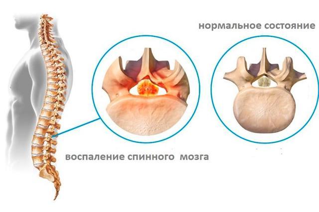 Воспаление спинного мозга симптомы