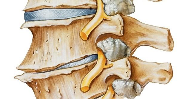 Дегенеративно-дистрофические изменения шейного отдела позвоночника: что такое ДДЗП, лечение, признаки