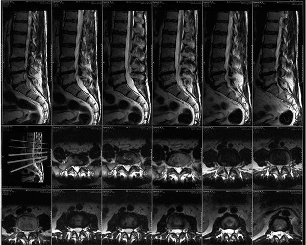 Для чего проводят и что показывает МРТ позвоночника