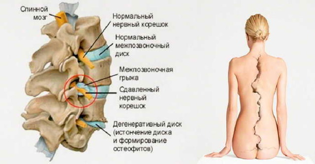 Остеохондроз с корешковым синдромом: симптомы и лечение поясничного, шейно-грудного отделов