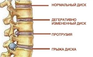 Симптомы грыжи поясничного отдела позвоночника: признаки, как проявляется межпозвоночная грыжа у женщин