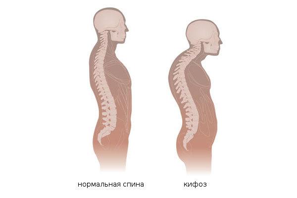Кифоз (1, 2 и 3 степени): лечение грудного отдела позвоночника, причины, диагностика