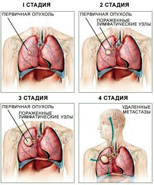 Метастазы в позвоночнике: прогноз срока жизни, отзывы, симптомы перед смертью, лечение
