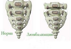 Люмбализация s1 позвонка (полная и неполная): причины, симптомы, лечение