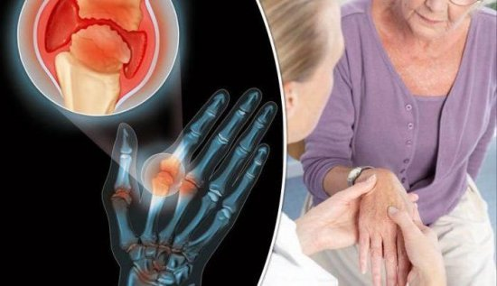 Диагностика ревматоидного артрита: диагностические критерии, виды (дифференциальная, лабораторная)