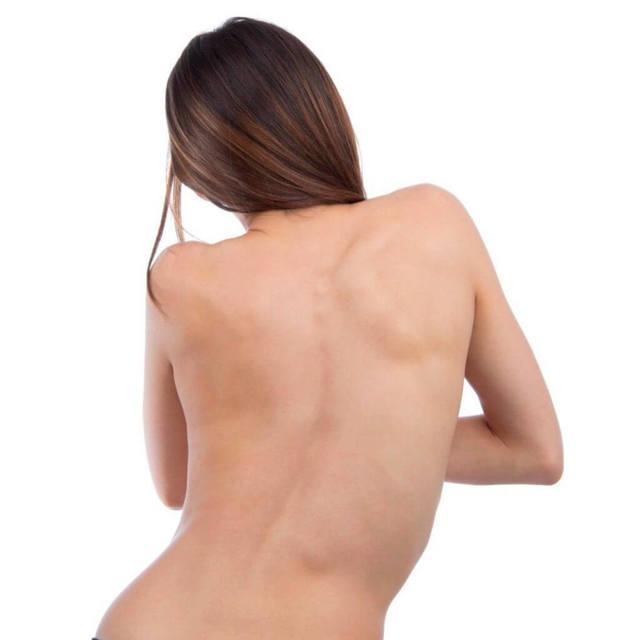 Корсет для осанки: зачем нужен ортопедический реклинатор для позвоночника, как выбрать держатель для спины