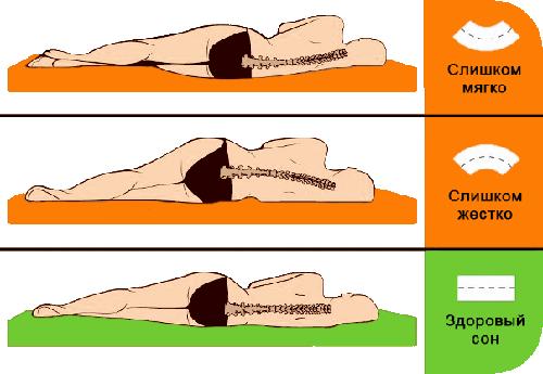 Как правильно спать при сколиозе, какой нужен матрас для сна