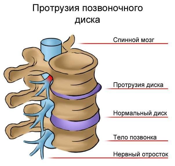 Корешковый синдром грудного отдела позвоночника: симптомы, лечение воспаления