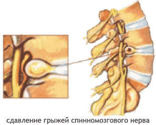 Профилактика остеохондроза позвоночника (шейного, грудного и поясничного отдела), методы лечения