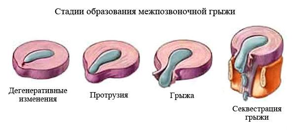 Что такое копчик: где находится, строение у человека, как выглядит, особенности анатомии
