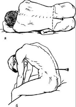 Люмбальная пункция спинного мозга: для чего делают, техника выполнения, последствия и осложнения