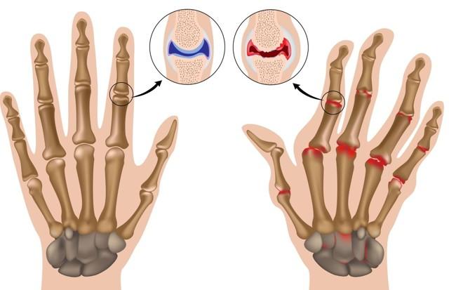 Карбокситерапия для суставов и позвоночника: показания, проведение и результат